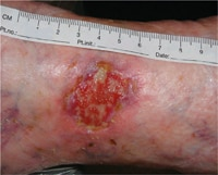 The ulcer at inclusion after cleansing.