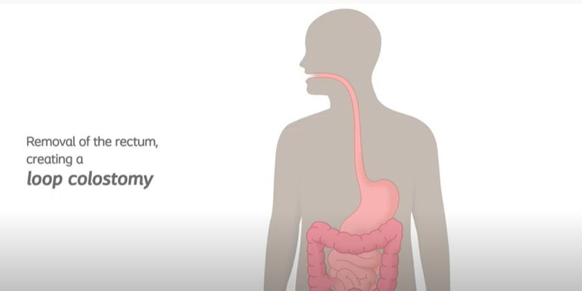Loop Colostomy Removing Rectum