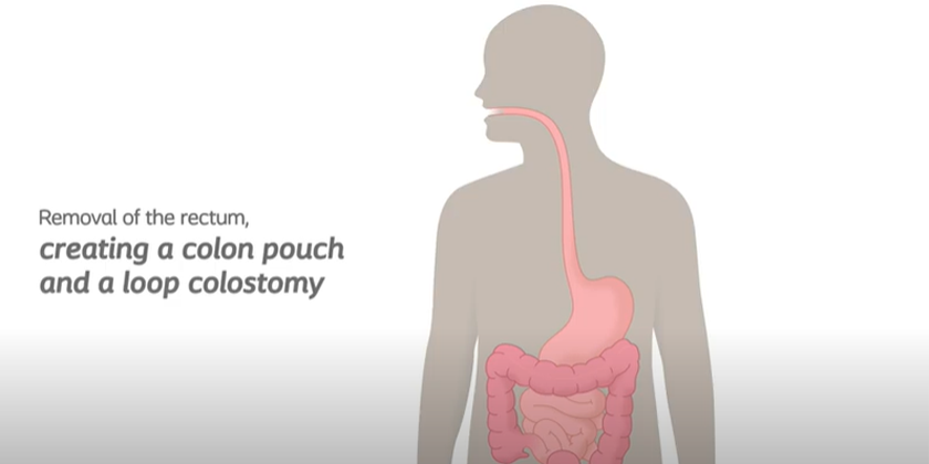 Loop Colostomy And Pouch Removing Rectum