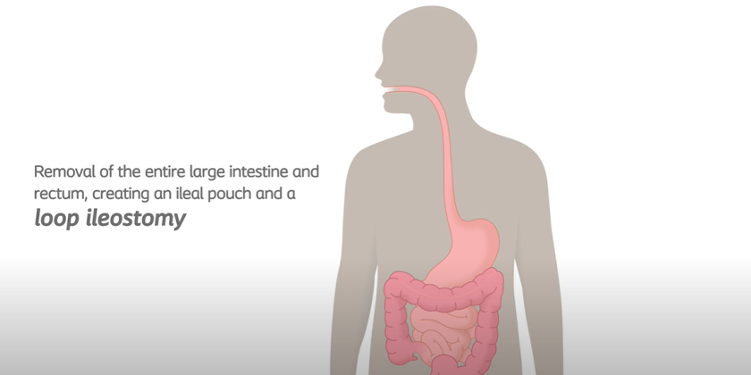 Loop Ileostomy And Pouch - Removing Colon And Rectum