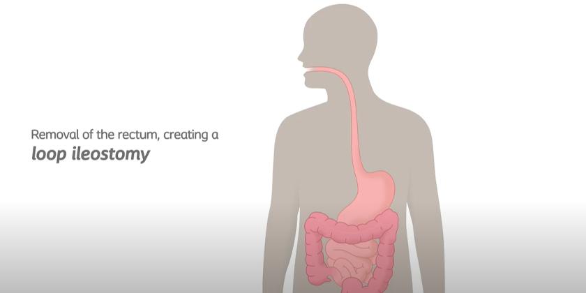 Loop Ileostomy Removing Rectum