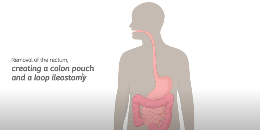 Loop Ileostomy And Pouch - Removing Rectum