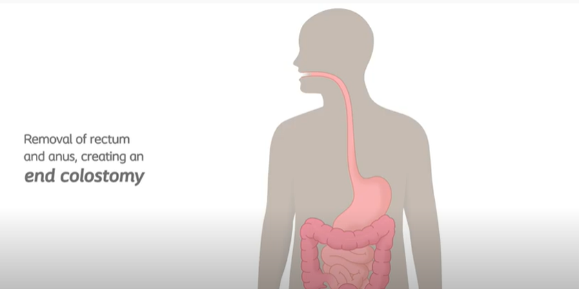 End Colostomy Removing Rectum And Anus