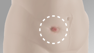 Abdomen shown of someone that has a body profile with an inward area around the stoma