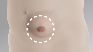 Abdomen shown of someone that has a body profile with an outward area around the stoma